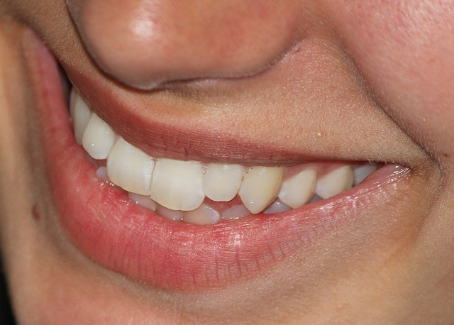 [object object] Teeth Whitening & Teeth Care – Are You Taking Proper Care of Your Teeth? smile 665433 640