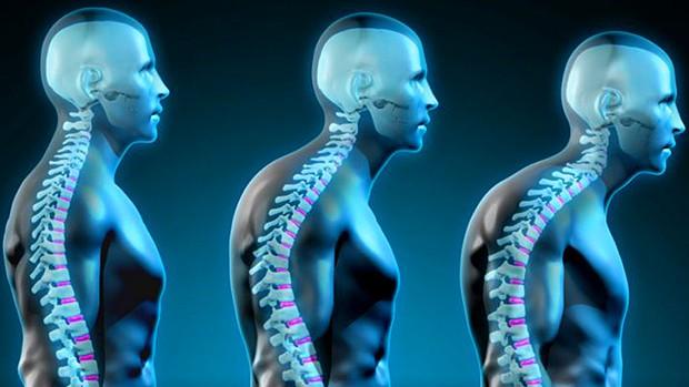 forward head posture Forwarding Head Posture Two Drills to Correct Forward Head Posture