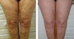 My Cellulite Solution – For Silky Smooth Legs how to get rid of cottage cheese thighs inspirational how to get rid of cellulite lifestyle by design of how to get rid of cottage cheese thighs 310x165