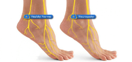 The Neuropathy Solution Solves Your Peripherhal Neuropathy Pain how to reverse cure neuropathy 2