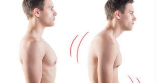 forward head posture Forwarding Head Posture shorter fatter forwardneck 310x165