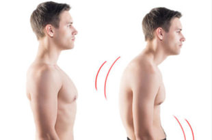 forward head posture Forwarding Head Posture shorter fatter forwardneck 310x205