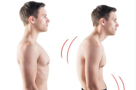 forward head posture Forwarding Head Posture shorter fatter forwardneck