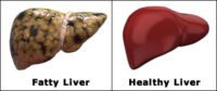 Fatty Liver Remedy 2
