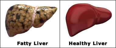 fatty liver remedy Fatty Liver Remedy fatty healthy liver